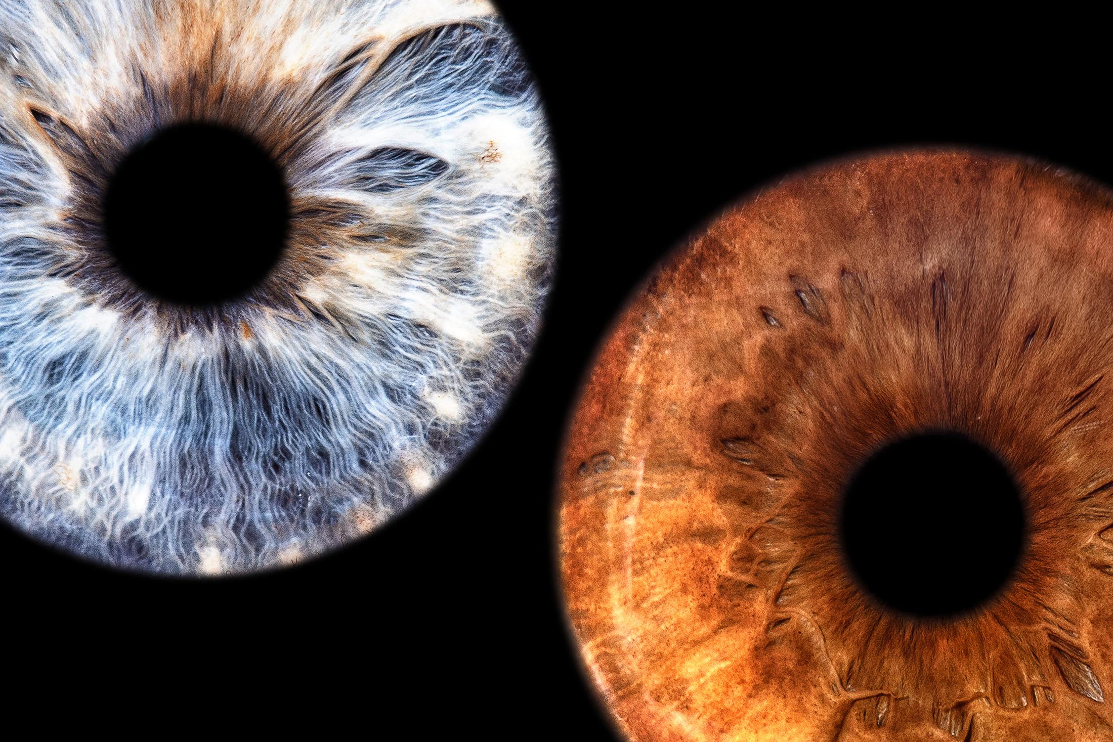 Irisfotografie Irisbilder Augenfotografie Augenbilder